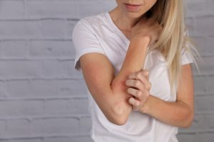 5 Tips For Avoiding Eczema Flares